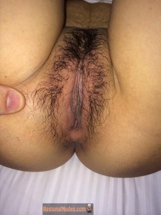 Hairy Vietnamese Genitals
