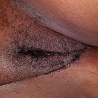 Trimmed Brown Jamaican Vulva