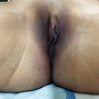 Brown Pussy Labia from Myanmar
