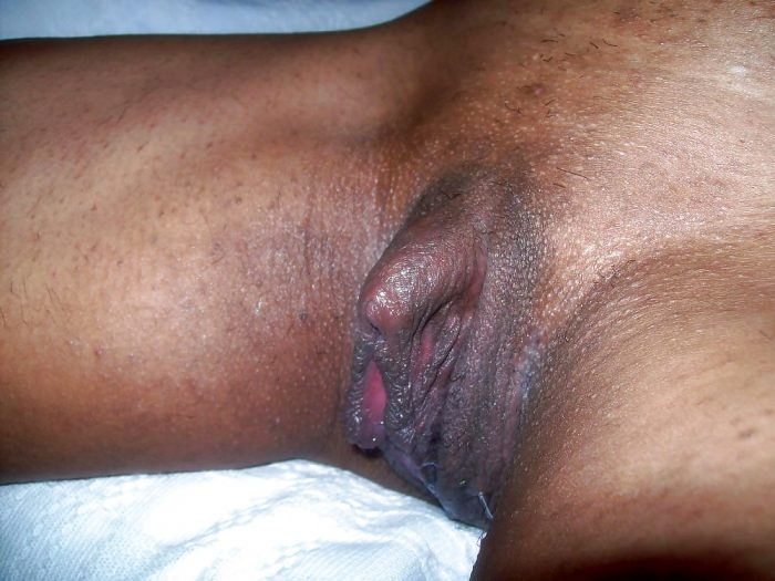 Huge Black clit and cunt